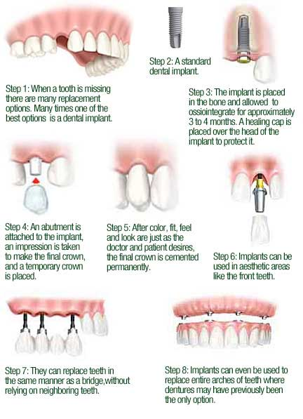 Oral Surgery And Dental Implants