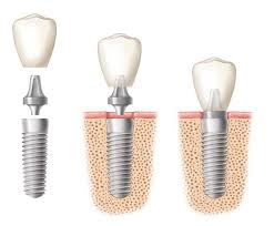 Dental Implants in Raleigh, NC