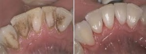 Tooth Staining
