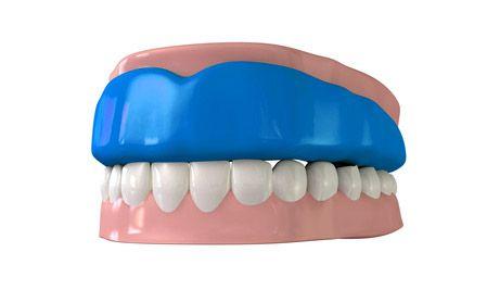 The Importance of Athletic Mouth Guards and How To Handle a Broken Tooth