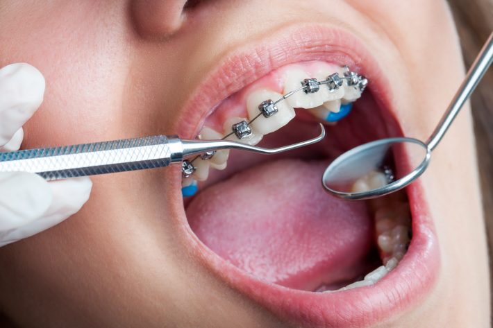 How Soon Should Your Child See the Orthodontist?