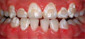 Image result for decalcification teeth