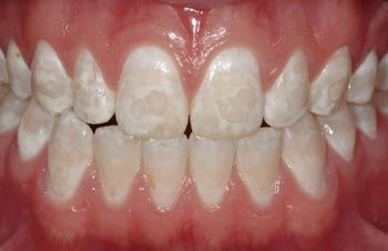 What Are White Spots On Teeth?