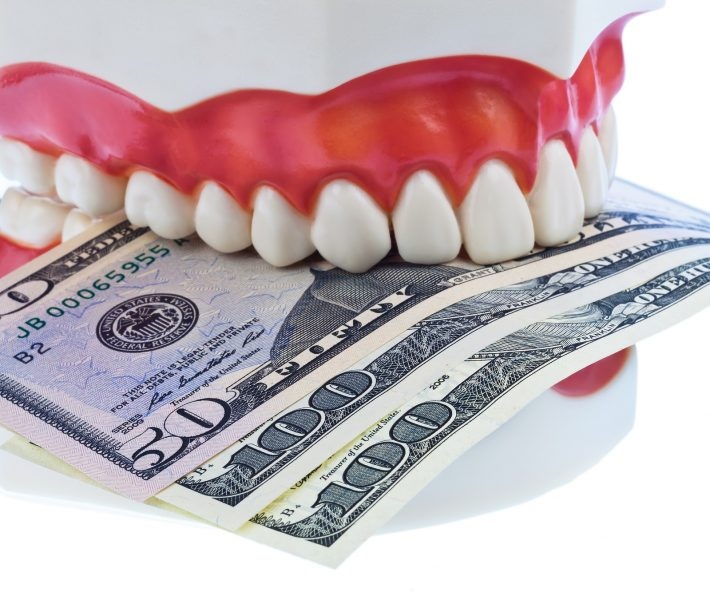 Dental Insurance Alternative