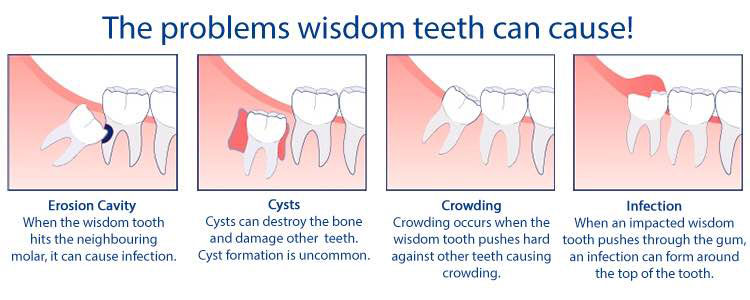 Wisdom Teeth Removal Adams Amp Cheek Family Dentistry