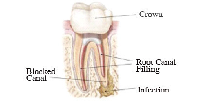 Crown vs Root Canal