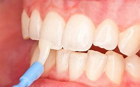 The Importance of Fluoride Varnish