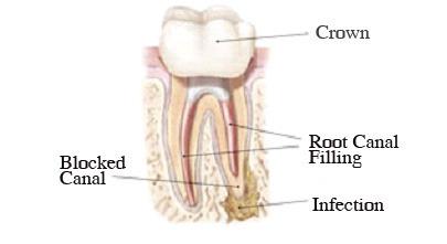Crown vs Root Canal - Adams & Cheek Family Dentistry